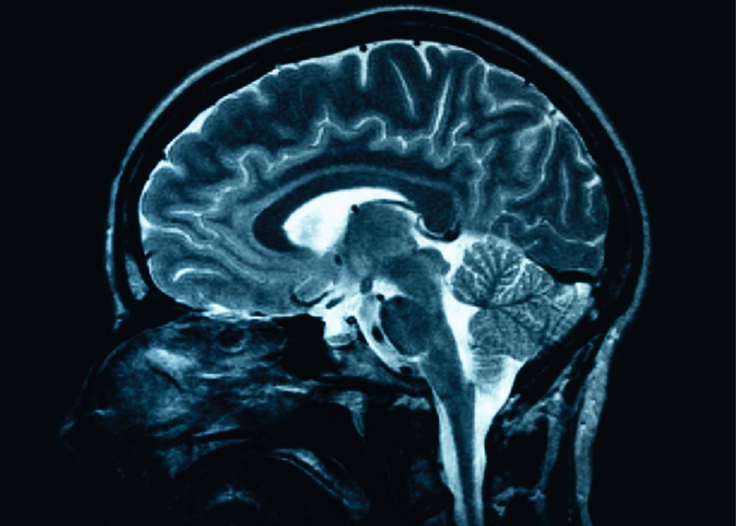 mri-of-brain-free-ms